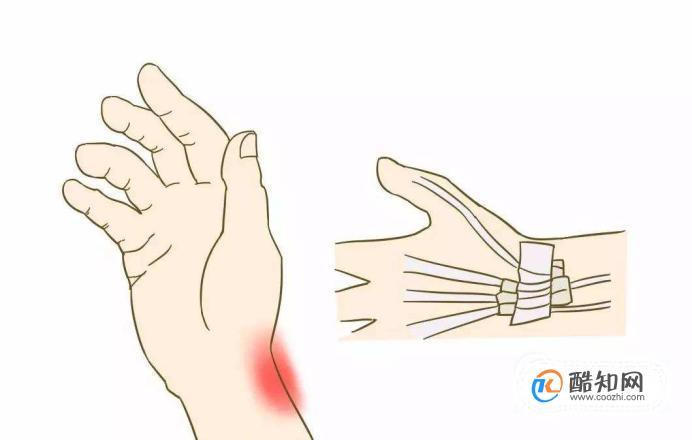 腱鞘炎的最佳治疗方法